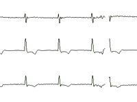 EKG-Bauanleitung