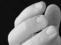 Hand mit Alginat abformen